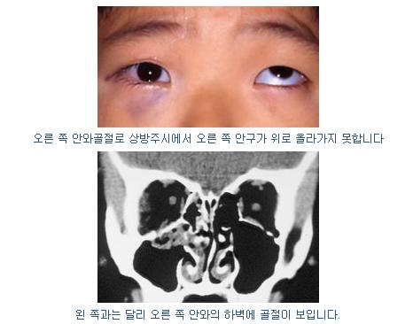 안와골절 증상